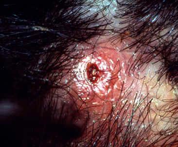 adipex clinics in memphis tn that take medicaid